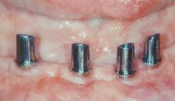 brücke oder implantat was ist besser